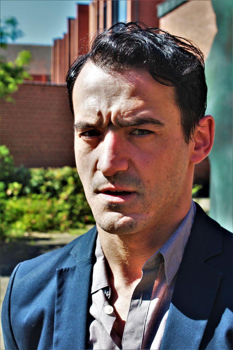 Slachtoffer Diego Perez Garçia. Het litteken, na vier jaar al wat vager geworden, loopt van zijn kin naar zijn kaak.