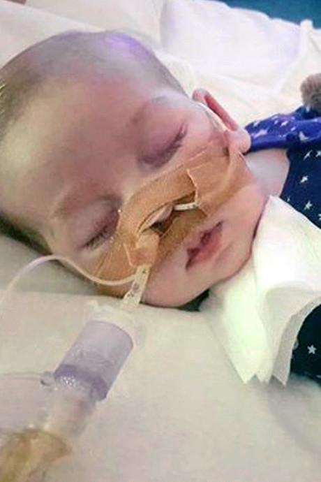 Artsen doodzieke baby Charlie bedreigd