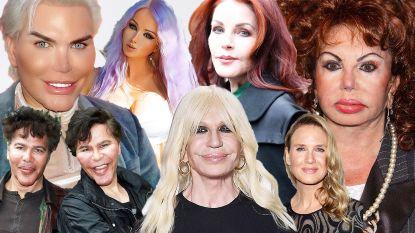 Trop is te veel: deze beroemdheden lieten zich verminken door de plastisch chirurg