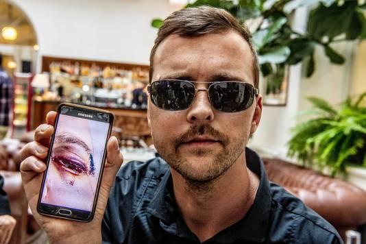 De Praagse ober Mirek van het Polpo restaurant laat een foto zien van zijn verwondingen.