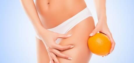 Pourquoi les femmes ont-elles plus de cellulite que les hommes?