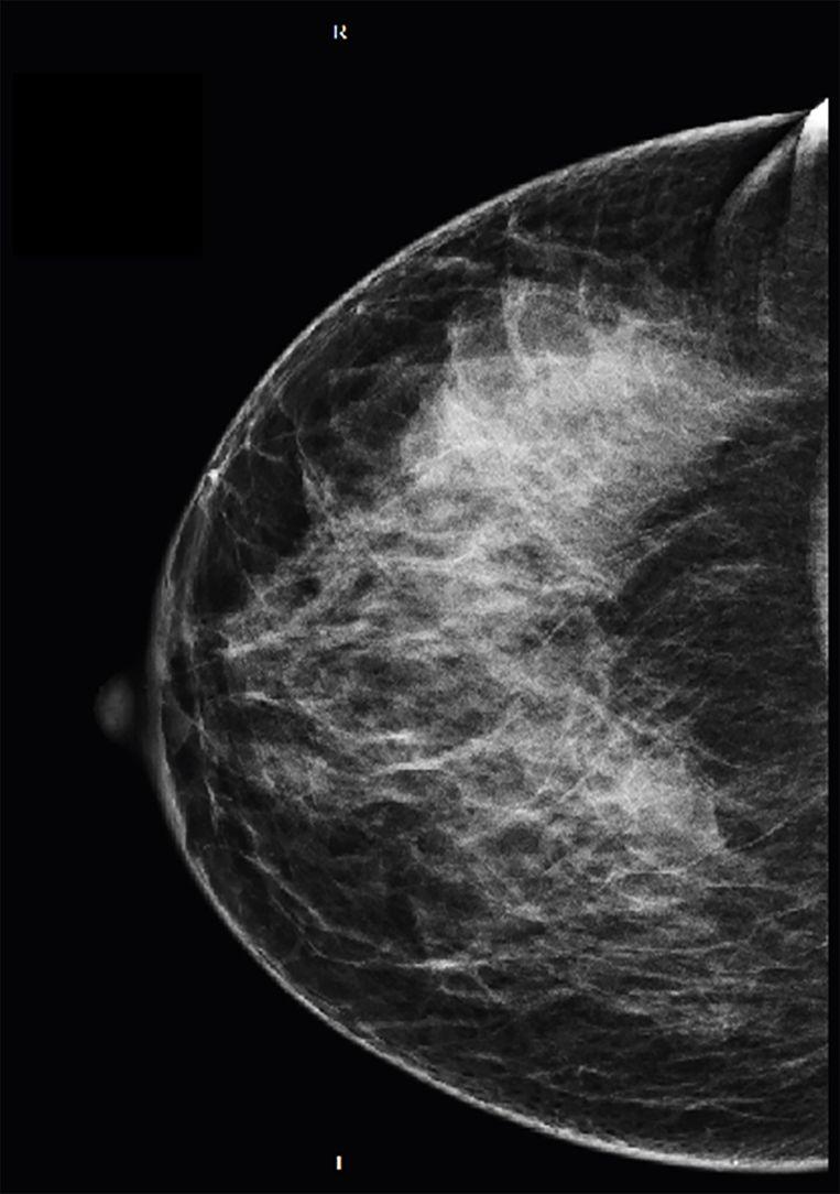 Een röntgenfoto van een borst met dicht klierweefsel, deze is moeilijk te beoordelen in een mammograaf. Beeld