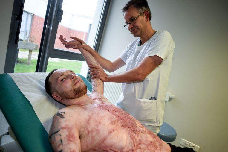 De 33-jarige Franck raakte voor 95 procent verbrand.