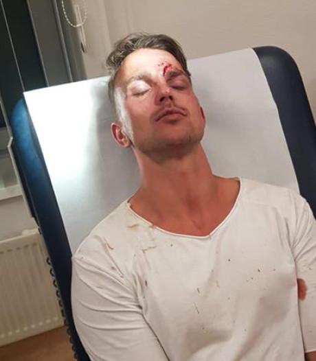 Helmondse Alard (30) mishandeld op 7th Sunday: 'Uit het niets kreeg ik een klap en kopstoot'
