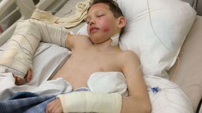 """Vlaamse jongen (10) valt acht meter diep uit skilift: """"Polsen en dijbeen gebroken, hersenschudding, ruggenwervel geraakt"""""""