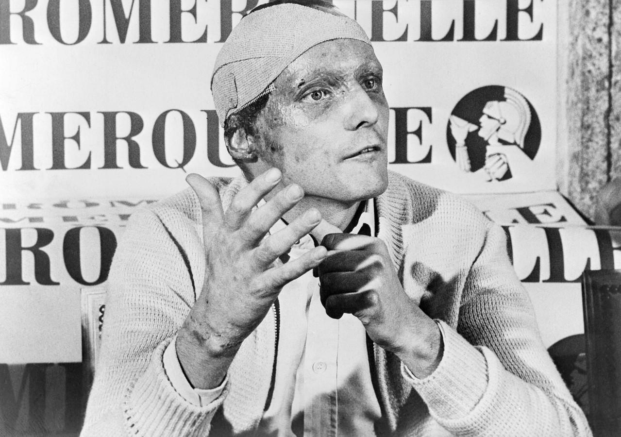 Le 12 septembre 1976, Niki Lauda annonce à la surprise générale qu'il compte participer au GP d'Italie, six semaines seulement après son accident.