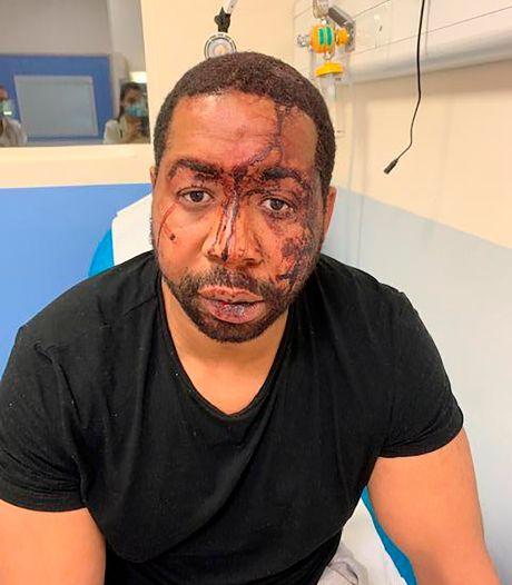 Macron wil effectievere bestrijding discriminatie door politie na 'beschamend' geweld tegen zwarte man