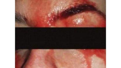 Vrouw zweet bloed uit handen en gezicht