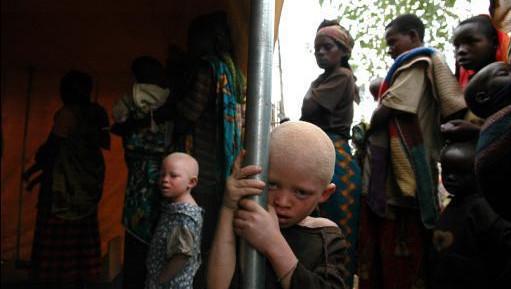 Les albinos sont victimes de discriminations dans de nombreuses régions d'Afrique.