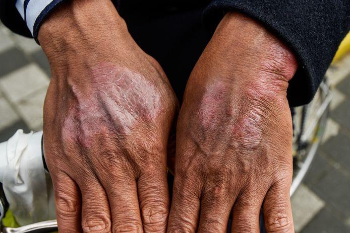 Ahmed Mohamed wordt na werken met chroom 6 verf al tien jaar geplaagd door ernstige eczeem.