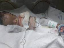 Le bébé né sans peau défie tous les pronostics
