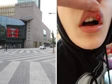 Lèvre abîmée, commotion cérébrale... Un ado de 15 ans a été tabassé près de Rive Gauche