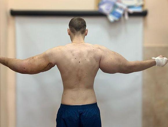 Kirill na de eerste operatie.