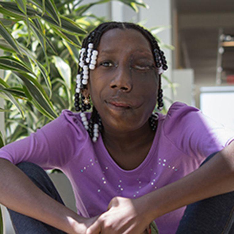 Hennglise Dorvia (15) na haar uren durende operatie.