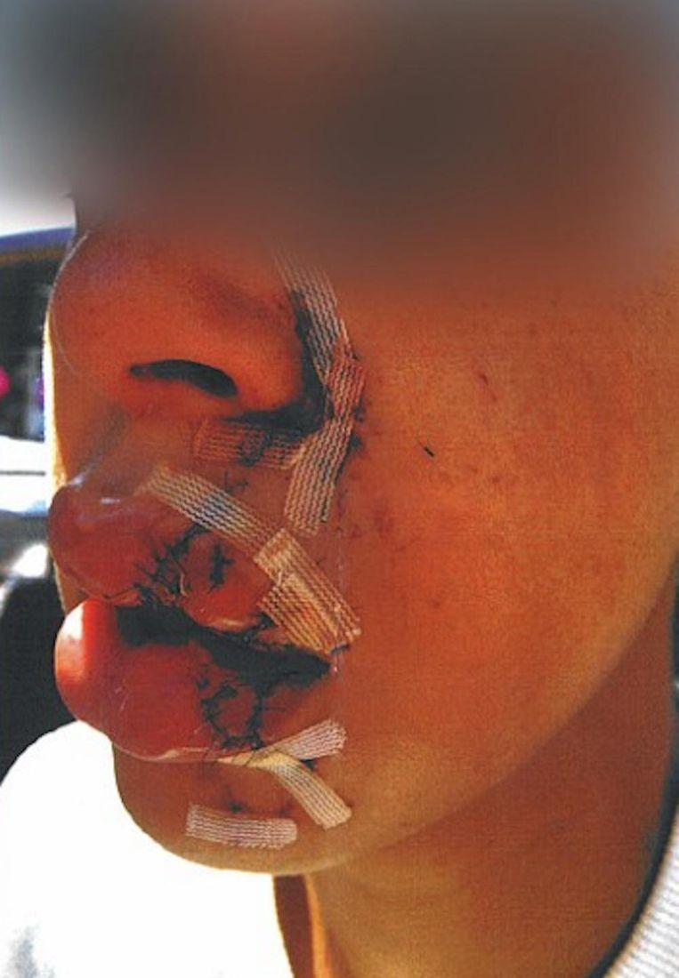 De vrouw houdt blijvende littekens aan de mishandeling over Beeld Politie