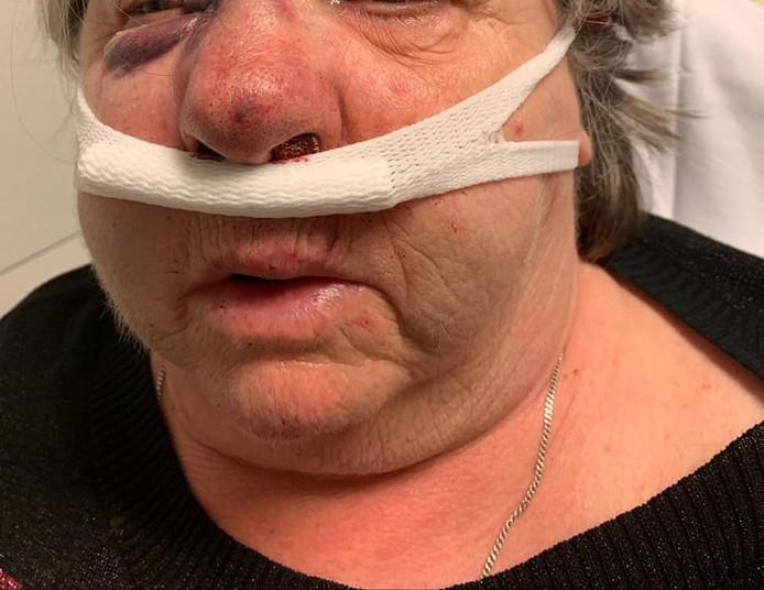 De oudere vrouw raakte gewond