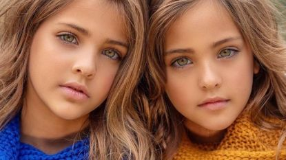 """Deze 8-jarige tweelingzussen worden """"de mooiste meisjes ter wereld"""" genoemd, en dat veranderde hun hele leven"""