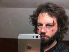 'Vechtpartij' van rockband Bökkers blijkt promotiestunt van band