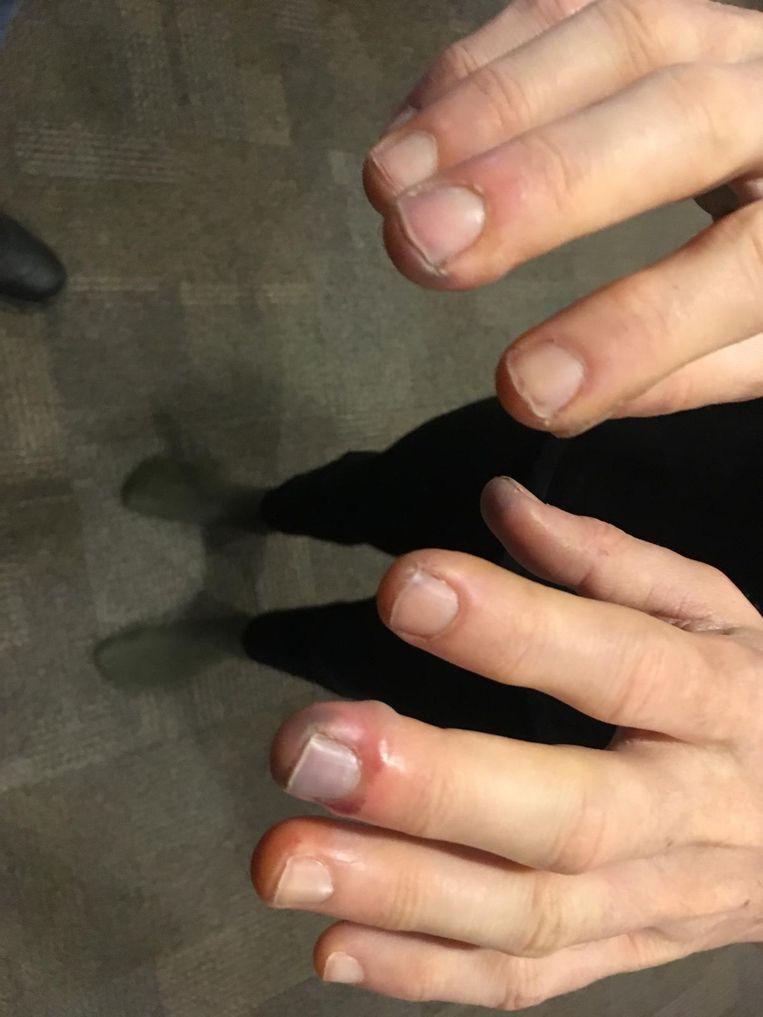 Acht vingers met vrieswonden.
