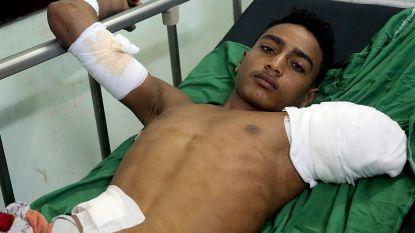 Minstens 55 burgers gedood en 170 gewond bij luchtaanvallen in Jemen