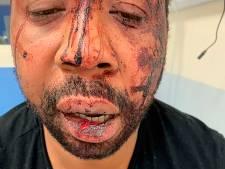 Franse president 'geschokt' door beelden geweld tegen zwarte man, agenten in hechtenis