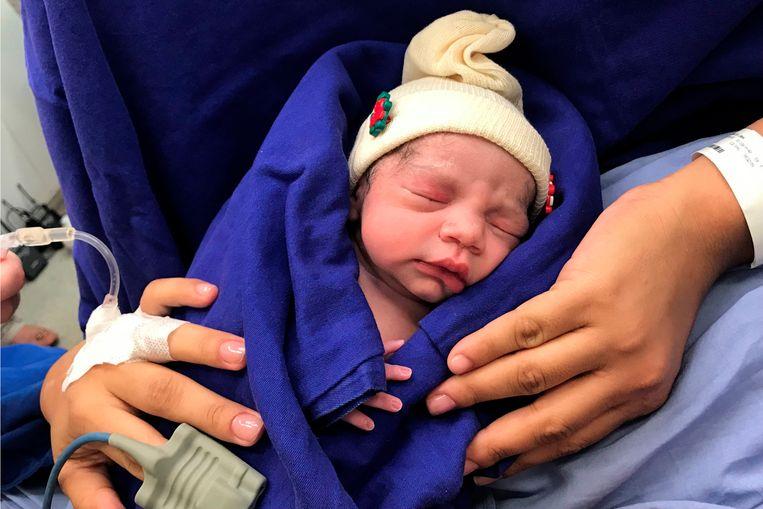 Het Braziliaans meisje is de eerste baby die geboren wordt na de transplantatie van een overleden donor.