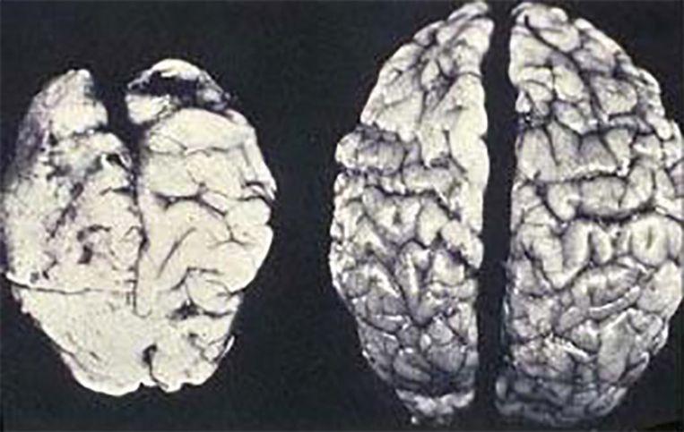 FAS-hersenen/normale hersenen