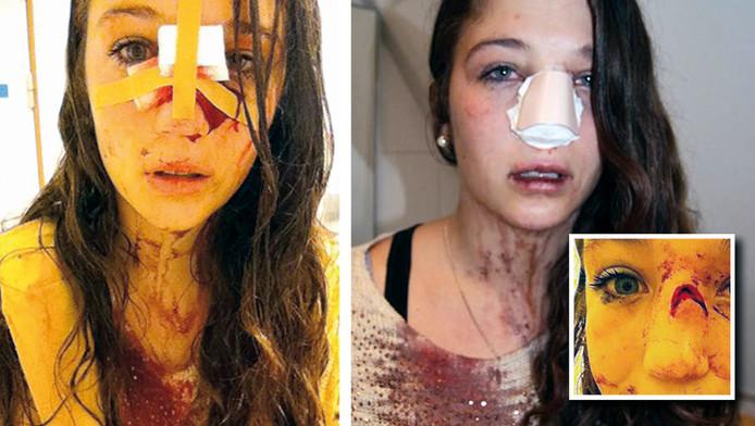 Sanne raakte gewond aan haar neus tijdens de TT-nacht in Assen.