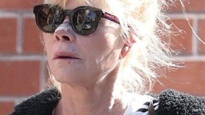 """Melanie Griffith: """"Ja, ik ben in behandeling voor huidkanker"""""""