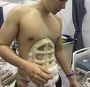 Na de operatie ziet de buik er ietwat merkwaardig uit met grote verbanden.