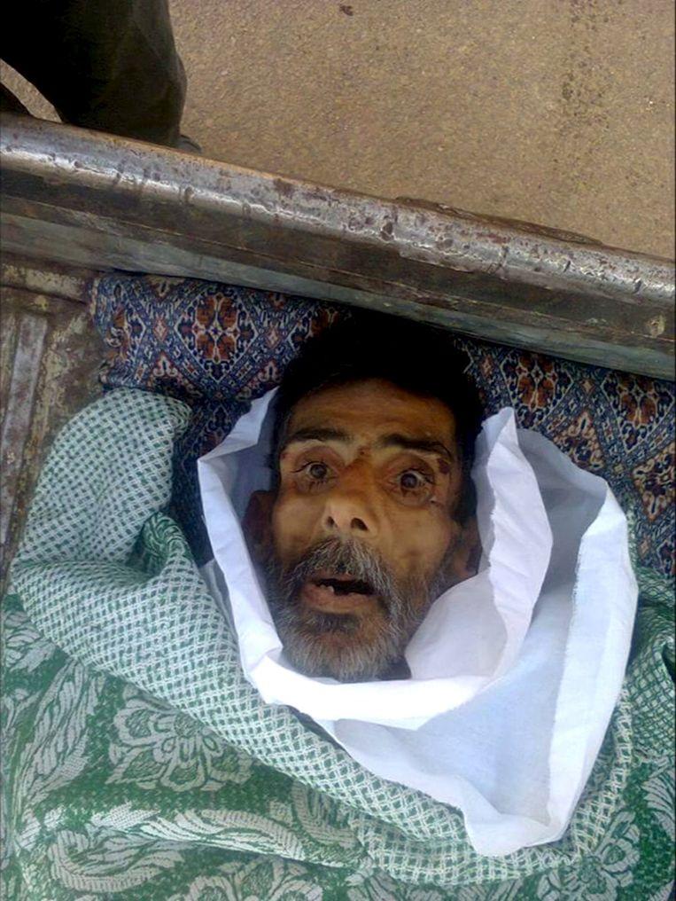 Een foto van een ondervoede man in Madaya, verspreid door het Syrisch Observatorium voor de Mensenrechten. Beeld REUTERS