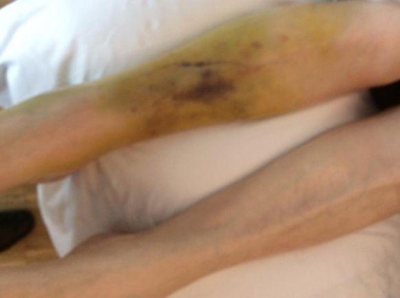 Zo ziet het been van Leona Vanaeken eruit op zondag 23 april 2017.