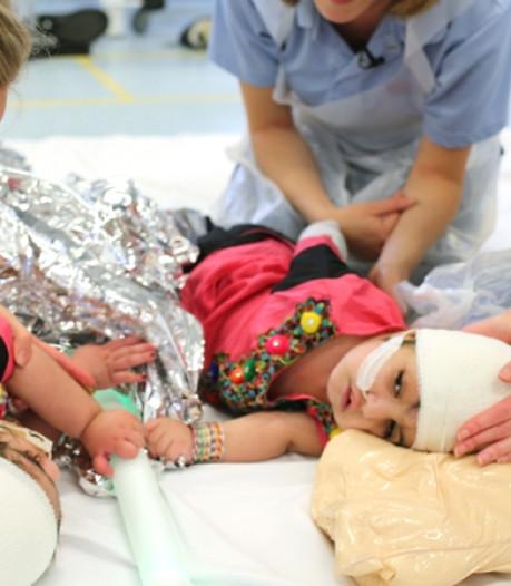 Siamese tweeling na operatie van 50 uur met succes gescheiden