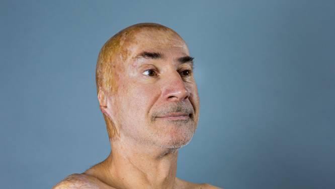 """Vlamingen met gezichtsafwijkingen roepen op om 'normaal' te doen tegen hen: """"Staar niet naar ons, maar vraag: 'Wat heb je?'"""""""