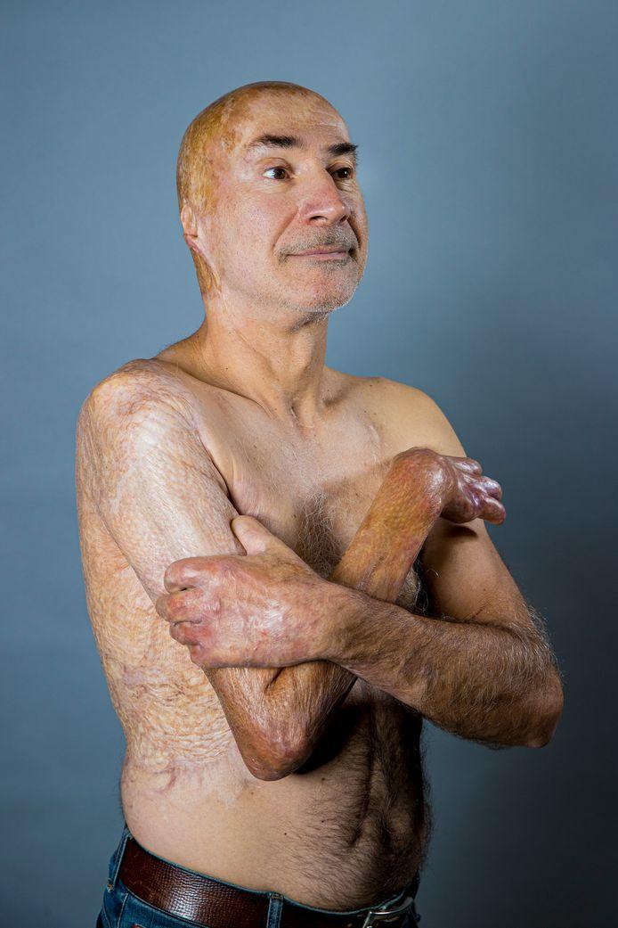 Jan Van Bastelaere (58) uit Belsele raakte verbrand bij een auto-ongeval