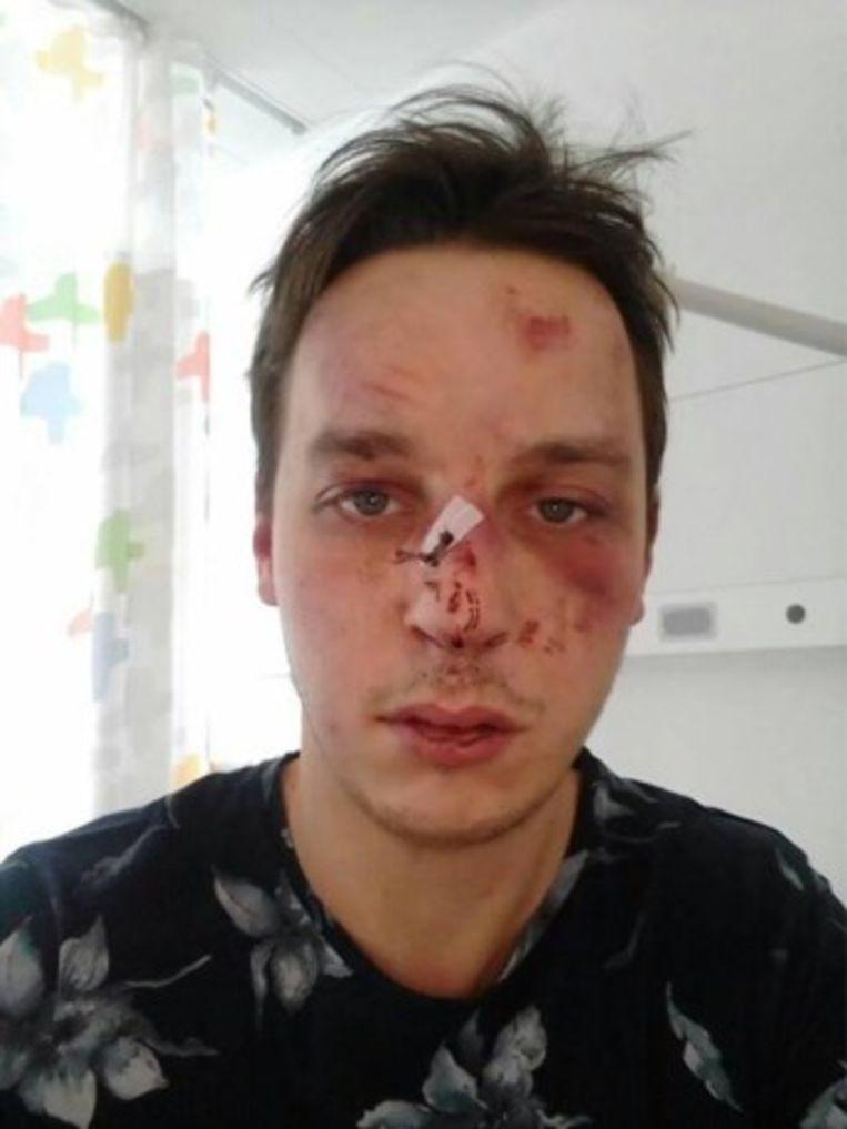 De 27-jarige Manoë werd ernstig toegetakeld na een nachtje stappen in Knokke.