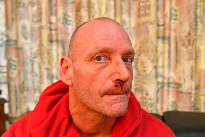 Helmond Sport-fan Leon Celosse werd na de derby FC Eindhoven - Helmond Sport meermaals geslagen met een wapenstok.