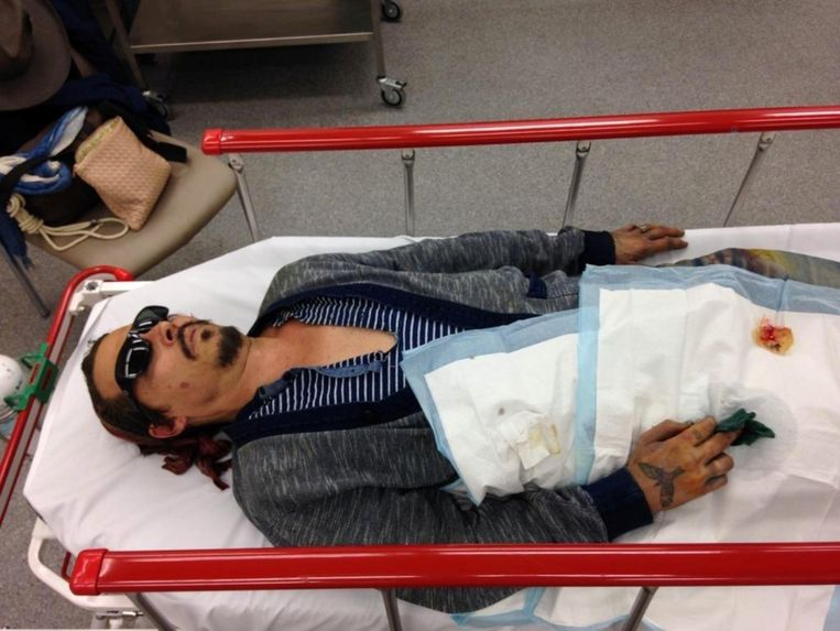 Johnny Depp wordt naar het ziekenhuis gebracht nadat hij een vingertopje verloren had.
