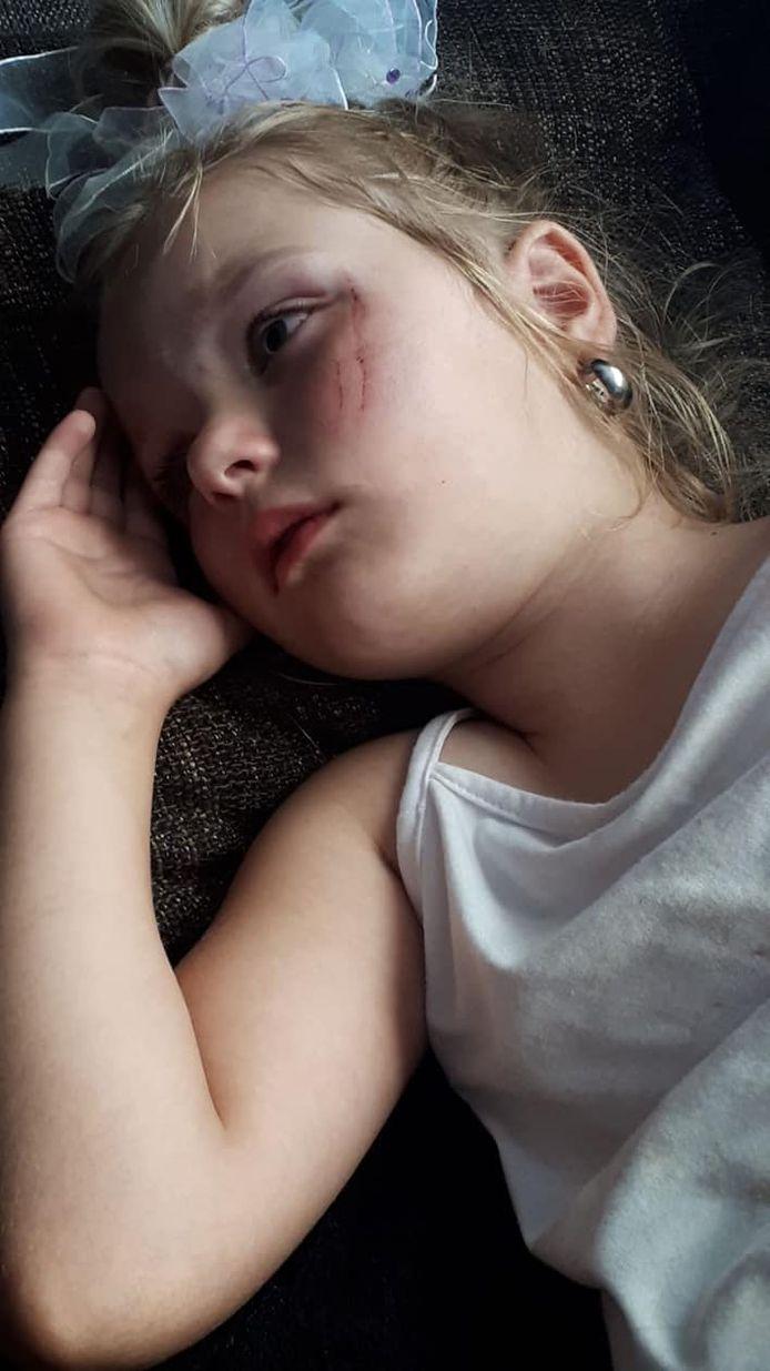 Het 4-jarige meisje uit 't Harde dat gewond raakte.