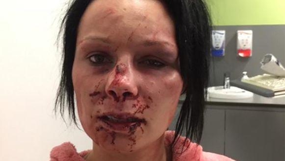 Coraline hield aan de slagen onder meer een neusbreuk, gekneusde oogkas, twee blauwe ogen, een gescheurde lip en een uitgeslagen tand over.