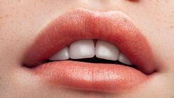 """Prof tandheelkunde vertelt alles wat je moet weten over de terreur van tandenknarsen: """"In het ergste geval bijt je jouw tanden kapot"""""""